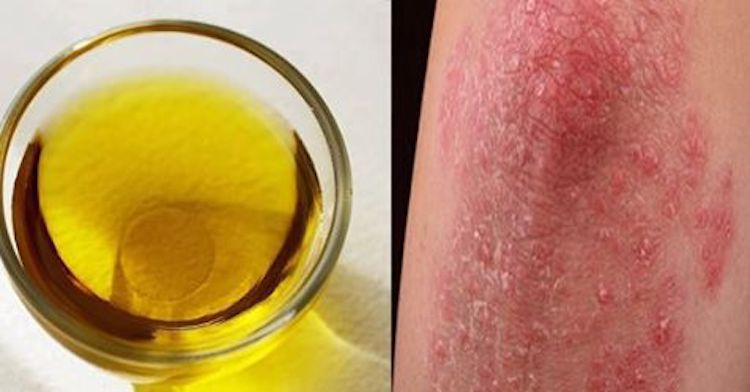 Melaleuca Oil Treats Psoriasis, Fungus, Cold Sores, Acne And Much More