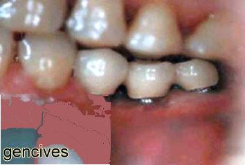 abcès dentaire traitement naturel