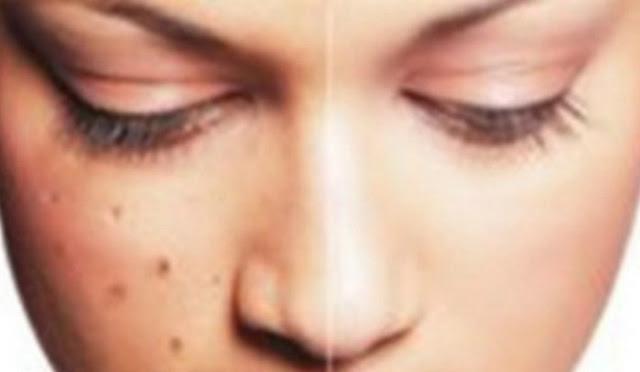 10 Cara Menghilangkan Flek Hitam Pada Kulit Wajah Secara Alami Dan Cepat