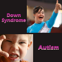 Perbedaan Anak Autis dan Anak Down Syndrome