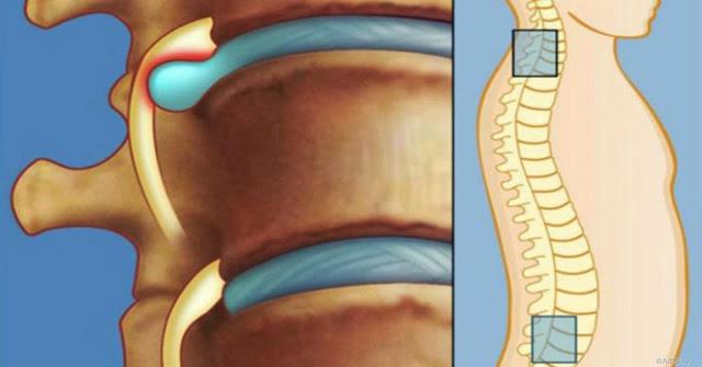 Лечение межпозвоночной грыжи без лекарств и операции: упражнения для спины от Шамиля Аляутдинова - ВИДЕО