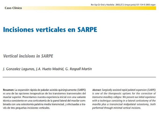 PDF: Incisiones verticales en la expansión rápida de paladar asistida quirúrgicamente (SARPE)
