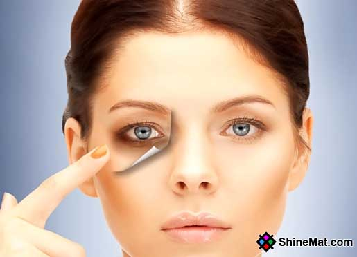 How to remove dark circles from eyes area