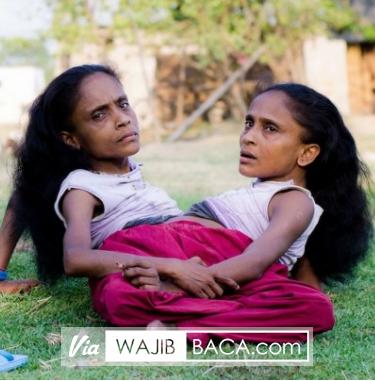 Terharu, Pria Ini Jatuh Cinta & Menikahi Wanita Kembar Siam Sebadan