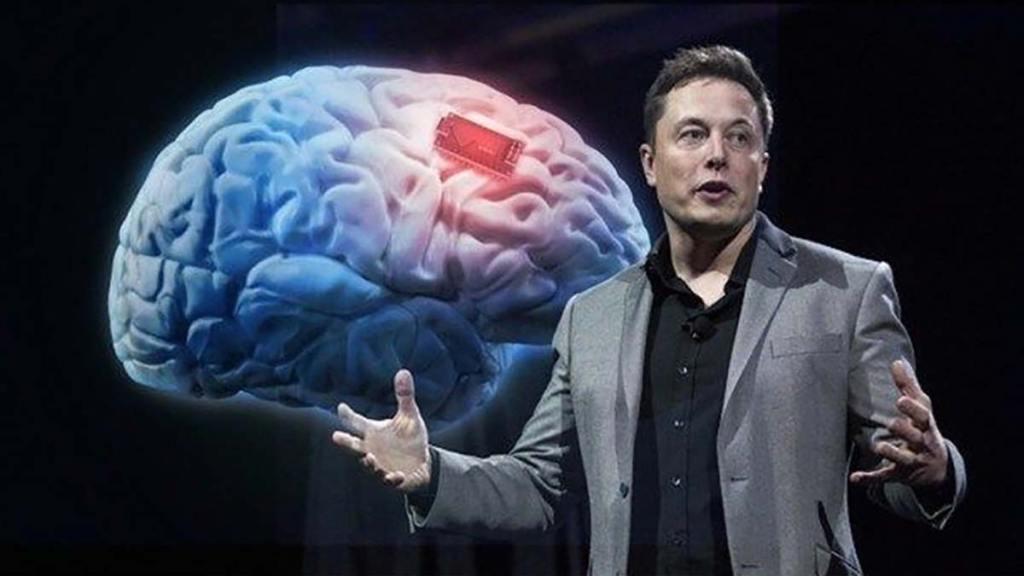 Dispositivo conecta el cerebro con un computador. Musk y equipo de Neuralink quieren llevarlo a la humanidad