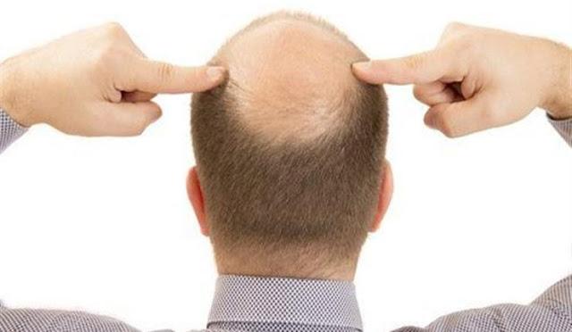 علماء اكتشاف سبب توقف نمو الشعر مع تقدم العمر!