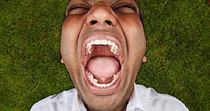barbatul cu cei mai multi dinti