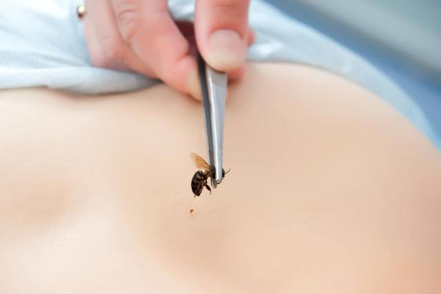 Manfaat Terapi Sengat Lebah