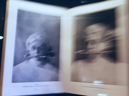 a blurred image of a book containing vintage images of women with old dentistry equipment in their mouths, caging their lower faces