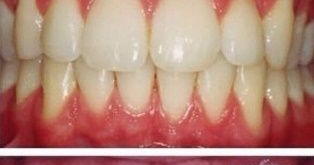 How To Whiten Yellow Teeth and Remove Plague and Tartar ...