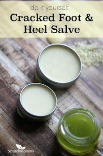 DIY Cracked Foot And Heel Salve