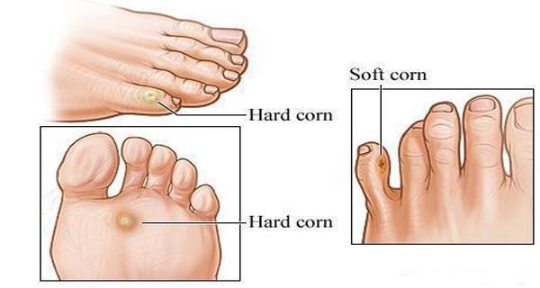 bataturile picioarelor pot fi vindecate rapid si eficient pe cale naturala