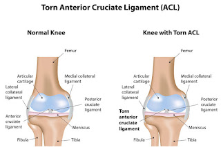 Side-by-side comparison of a normal knee (left) and a knee with a torn ACL (right)
