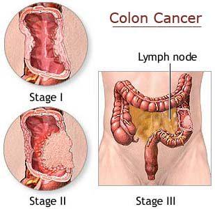 Apa Itu Kanker Usus Besar Kanker Kolorektum Gejala