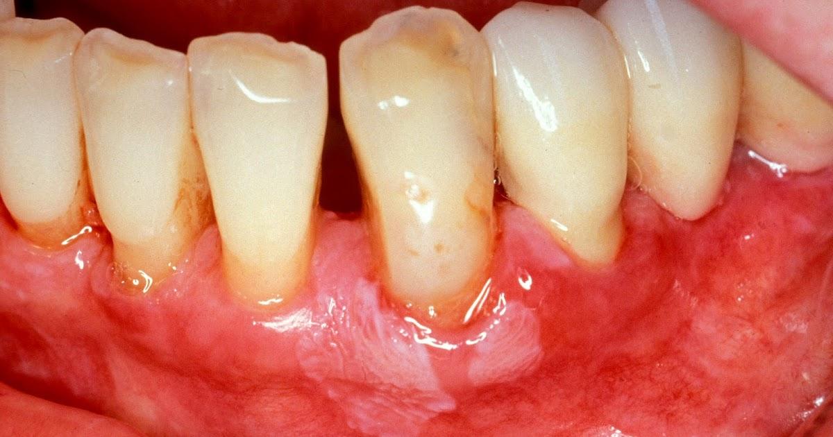 Frenkenklinik Parodontitis Parodontose
