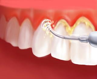 Tips Atasi Mencegah Karang Gigi jika tidak begini Efek dan Dampak
