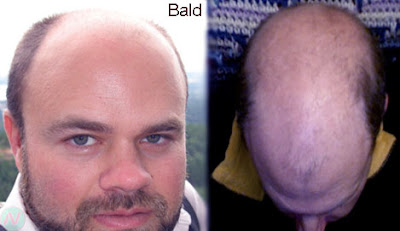 bald, bald head, টেকো, টাক