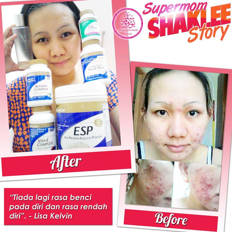 Skin Care Viva Untuk Kulit Berminyak: Pencuci Muka Kulit Berminyak Dan Jerawat Yang Universal