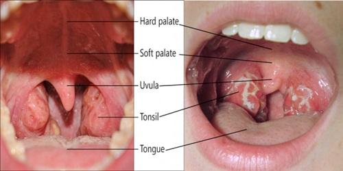 perbezaan jangkitan tonsil dan jangkitan kuman difteria, beza antara tonsillitis dan diphtheria, tanda-tanda, gejala, simptom tonsil dan difteria, perbezaan kesan sakit tonsil dan difteria terhadap kanak-kanak, beza cara merawat tonsil dan difteria, tonsil bengkak, tonsil bernanah, ulser mulut