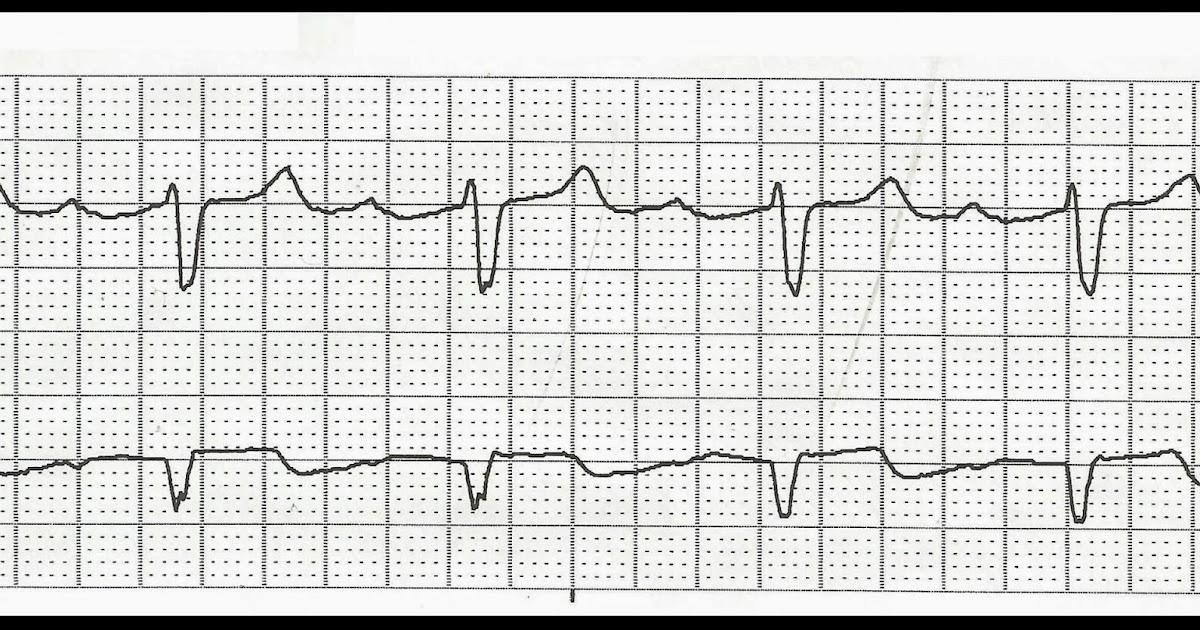 Float Nurse: Practice EKG Rhythm Strips 229