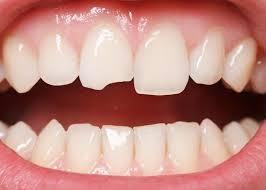Kết quả hình ảnh cho răng sứ có nứt k