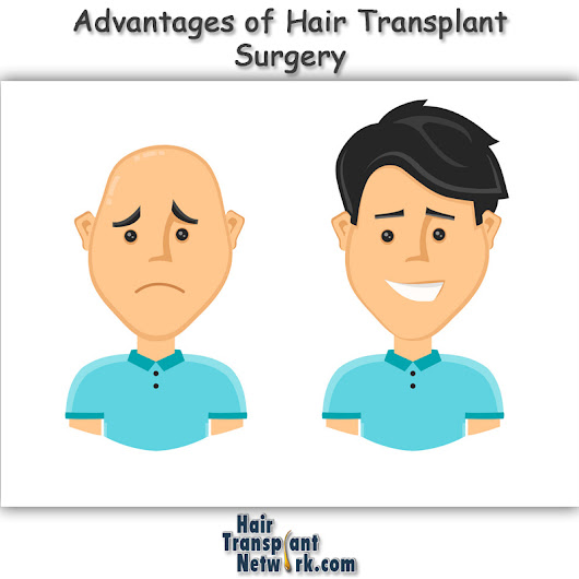Advantages of Hair Transplant Surgery