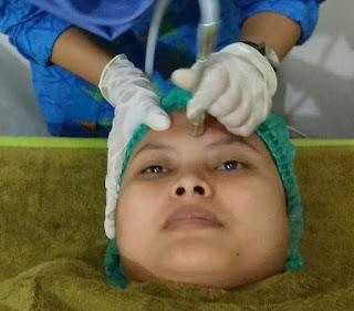 Karadenta Clinic Malang, Tempatnya Perawatan Kulit Wajah