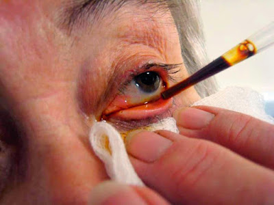 Obat Mata Katarak Bisa Didapatkan Dengan Mudah di Apotik