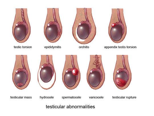 How To Shrink A Spermatocele