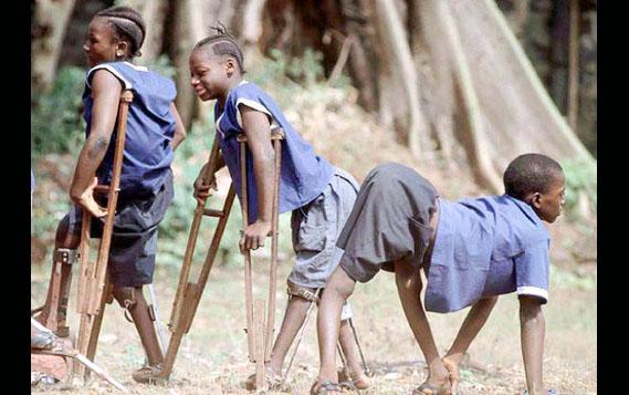 Resultado de imagen para poliomielitis