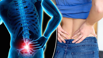 Lower Back Pain - Causes And Natural Remedies That Work