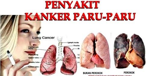 Obat Kanker Paru Paru Stadium 4 ~ Testimoni Pengguna QnC ...