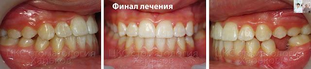 Результат ортодонтического расширения челюсти