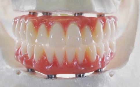 Implant supported complete denture Fix-On-4 Fixed