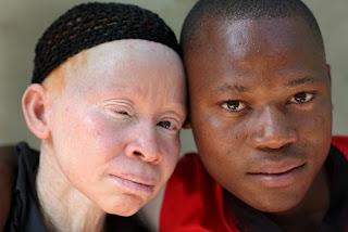 ALBINISM - Symptoms, Causes, Diagnosis And Treatment