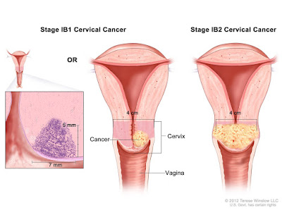 7 Signs Of Cervical Cancer That Women Need To Observe