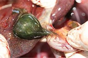 Del 10-15 por ciento de las personas experimentan dolor abdominal superior después de la extirpación de la vesícula biliar.