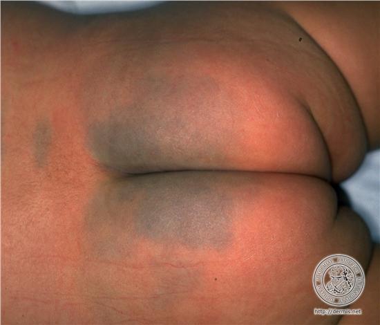 masajes para disminuir la celulitis mujer desnuda gateando cine frances