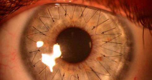 Trabalho da Ufal faz diagnóstico precoce de doença na córnea