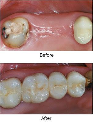 96b2b9f3df2 KLINIK PERGIGIAN SYARIFAH: Apa itu tanam gigi dan bezanya dengan dental  bridge