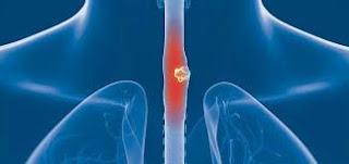 Esophageal Cancer Symptoms