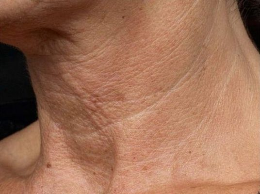 Masques anti-âge pour effacer les rides du cou