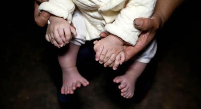 أغرب طفل صيني لديه 31 إصبع Strangest Chinese Baby