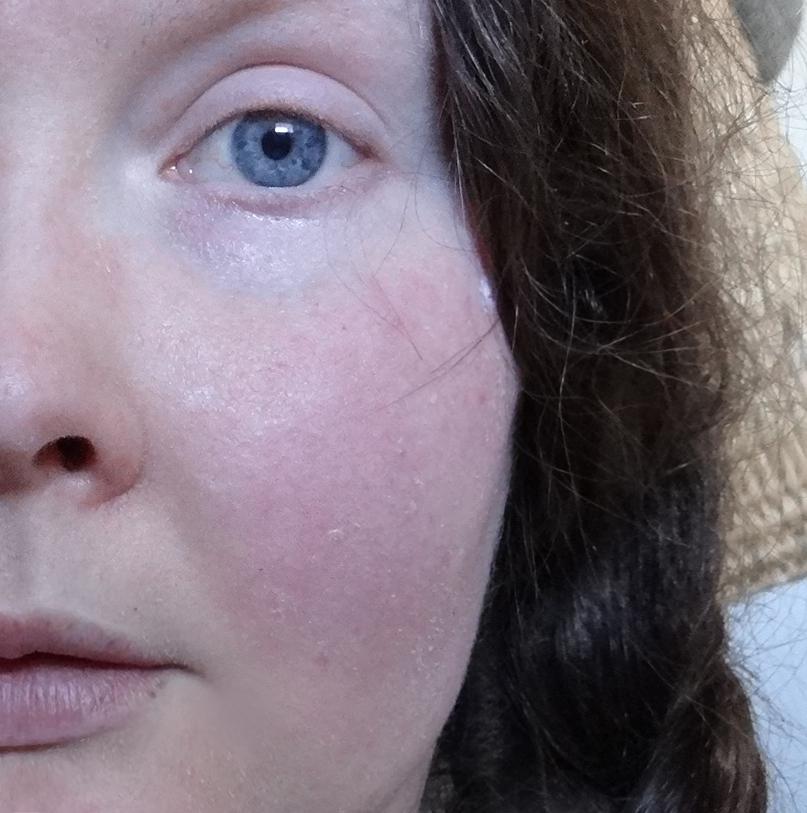 facial-flushing-and-sweating-sri-lanka-hot-video-web-site
