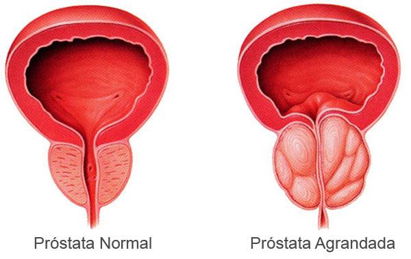 wow tuve prostatitis no cáncer