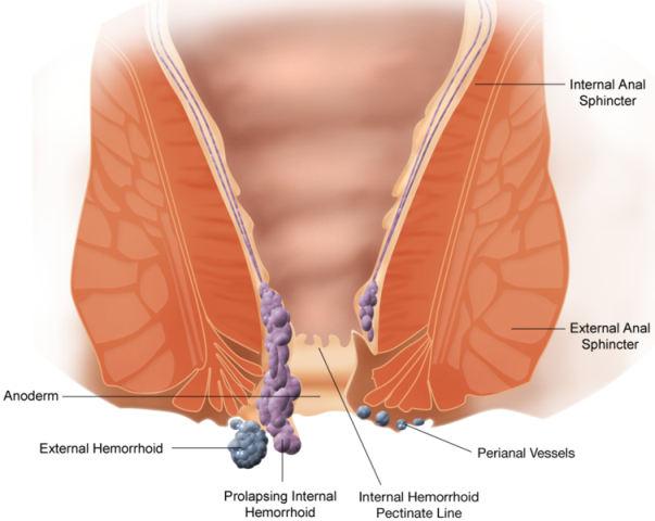 What do hemorrhoids look like