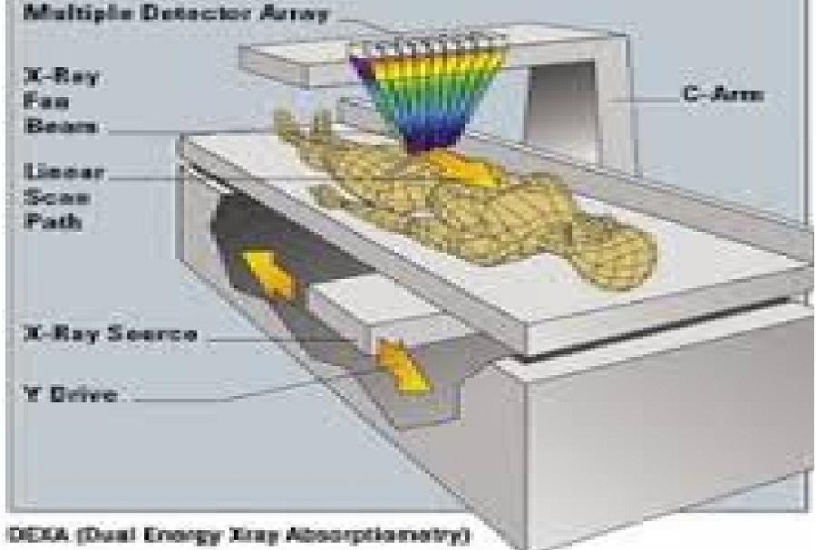 cara memeriksa kepadatan tulang dengan alat BMD