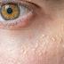 Cara Menghilangkan Jerawat Di Bawah Mata