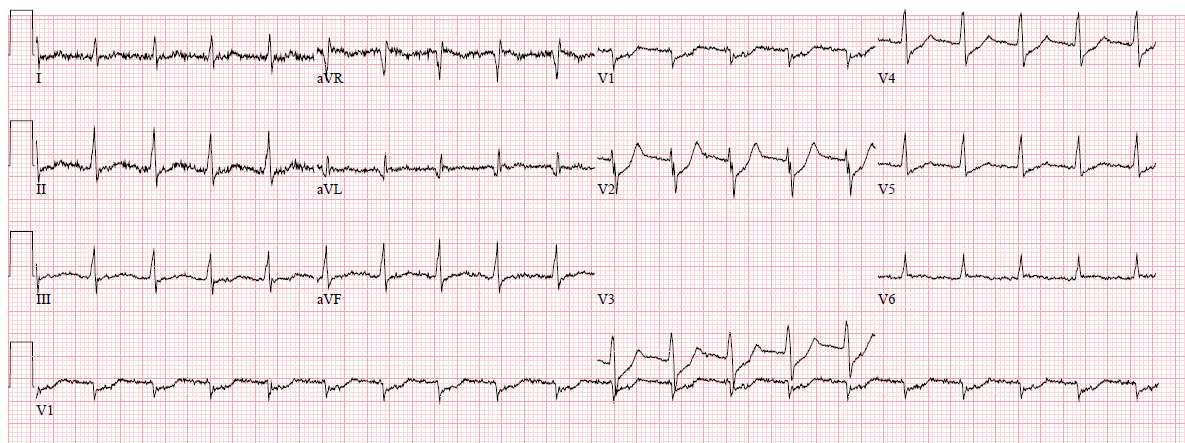 Dr smiths ecg blog fandeluxe Choice Image