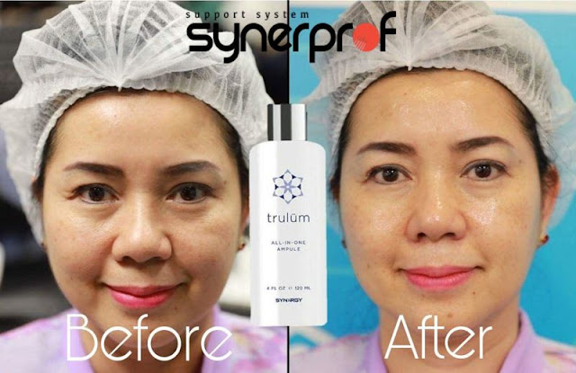 Jual Serum Penghilang Keriput Trulum Skincare Wibawamulya